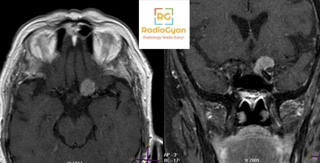 Spotters 1 Radiology Spotters
