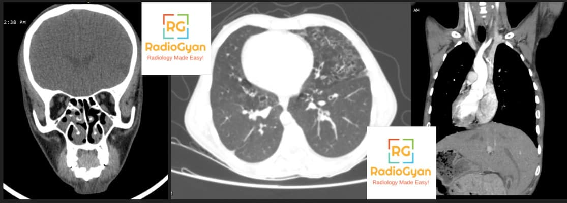 Spotters 4 Radiology Spotters