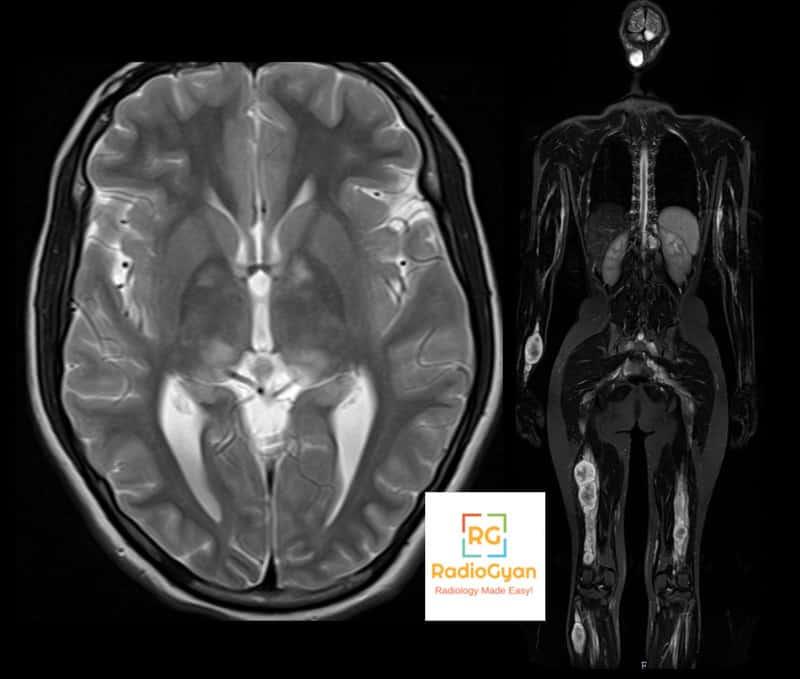 Spotters set 6 MSK radiology spotters