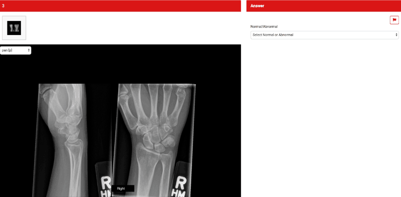Radiograph of wrist as an example for Final FRCR rapid reporting