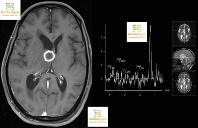 MRI of the brain with spectroscopy showing tuberculoma