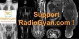 Support RadioGyan sidebar