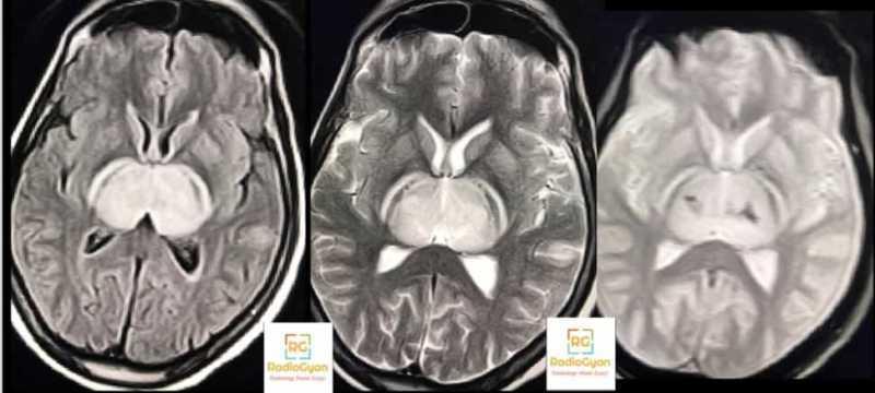 Dengue encephalitis Interesting radiology cases