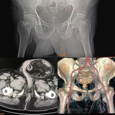 Inguinoscrotal hernia Radiology Cases Quiz RadioGyan