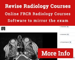 Revise Radiology Courses FRCR