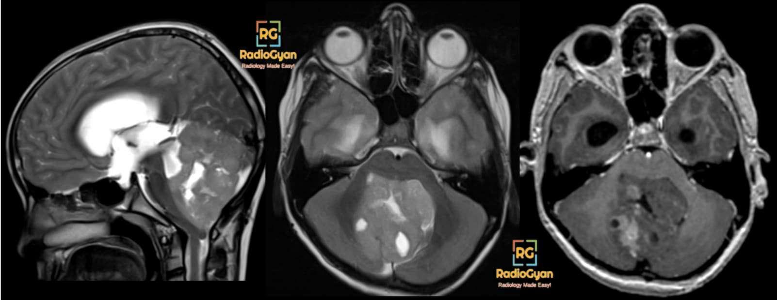 Medulloblastoma Classic radiology cases