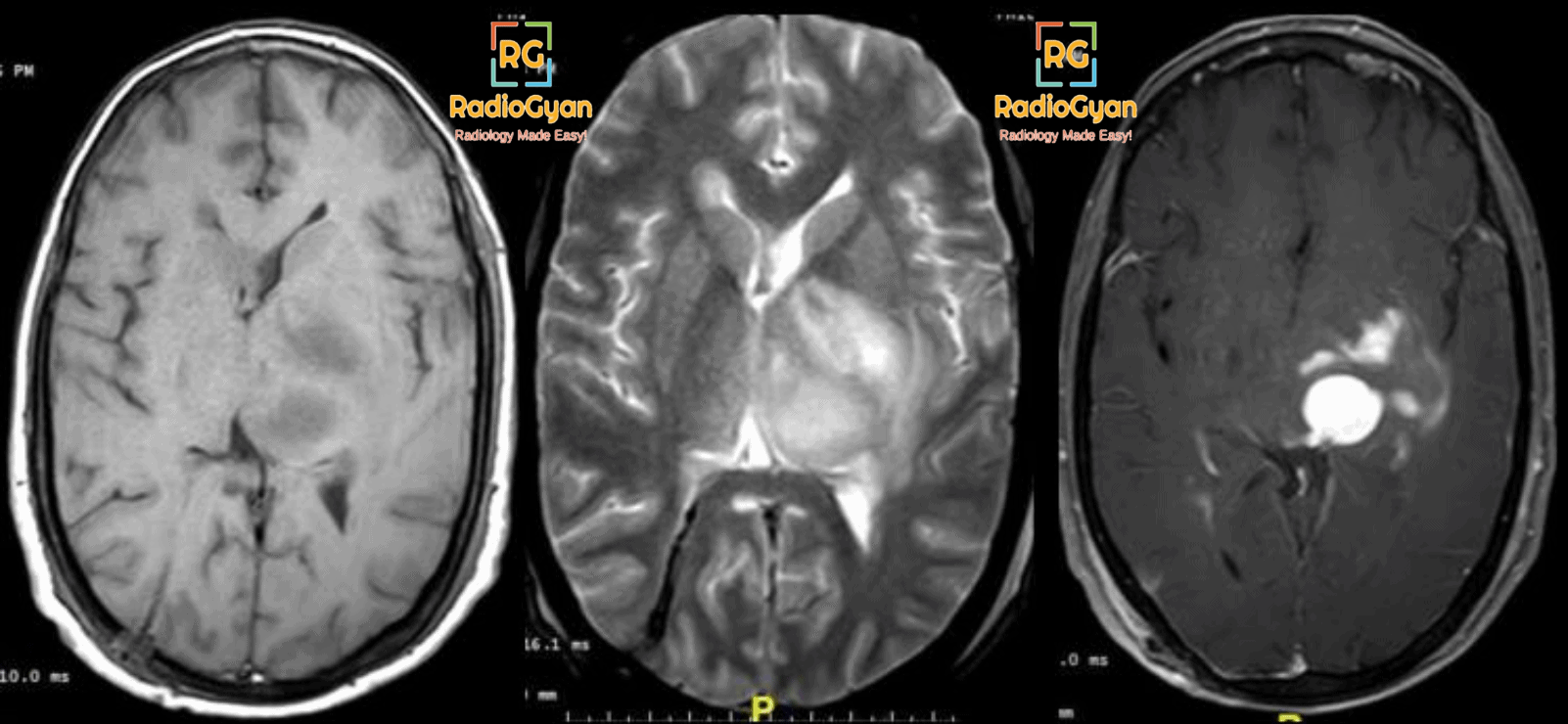 MRI showing a brain tumor - glioblastoma multiforme (GBM)