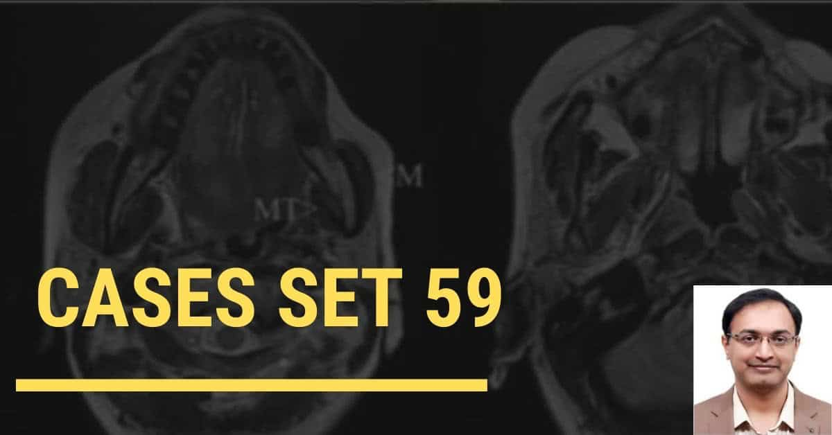 Interesting neuroradiology cases