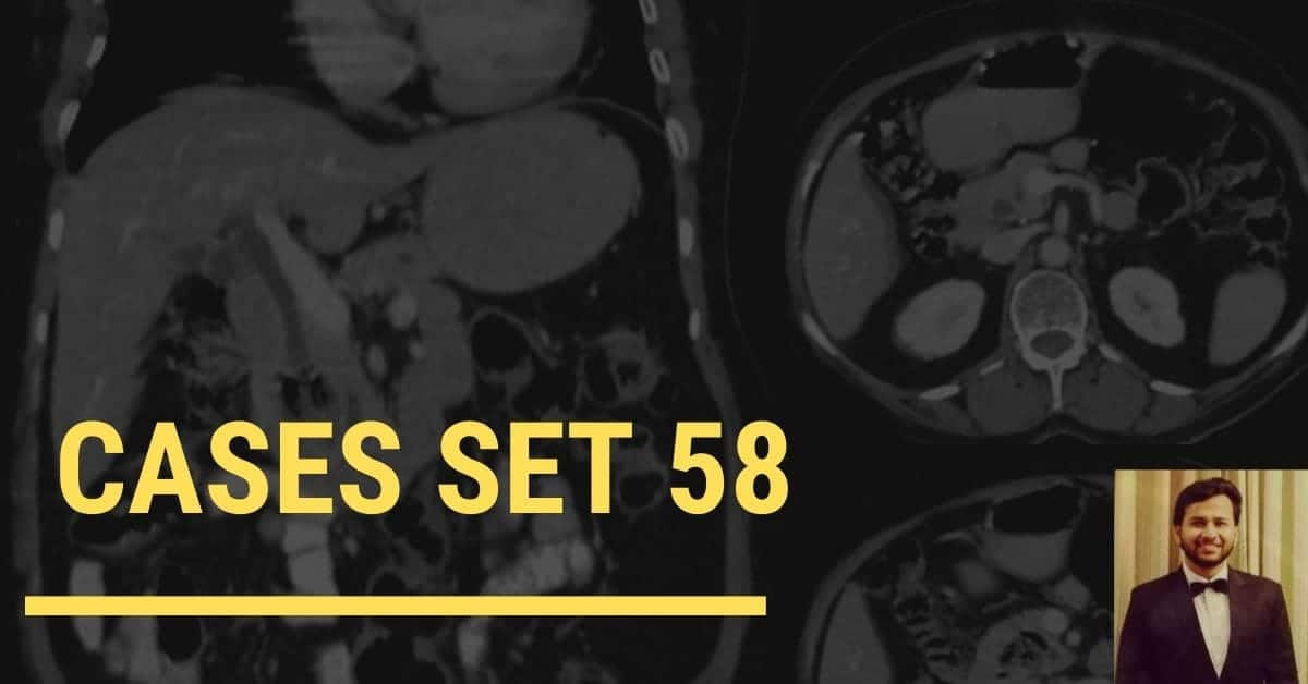 Spotters set 58 - Interesting Radiology cases