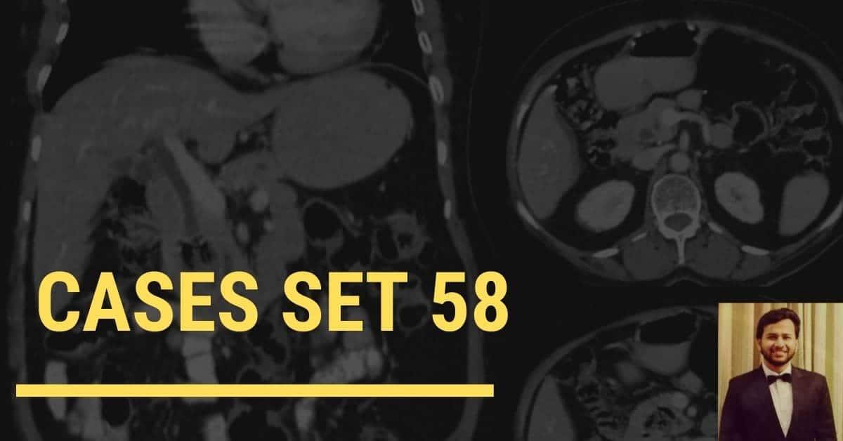 Spotters set 58 - Interesting Radiology cases