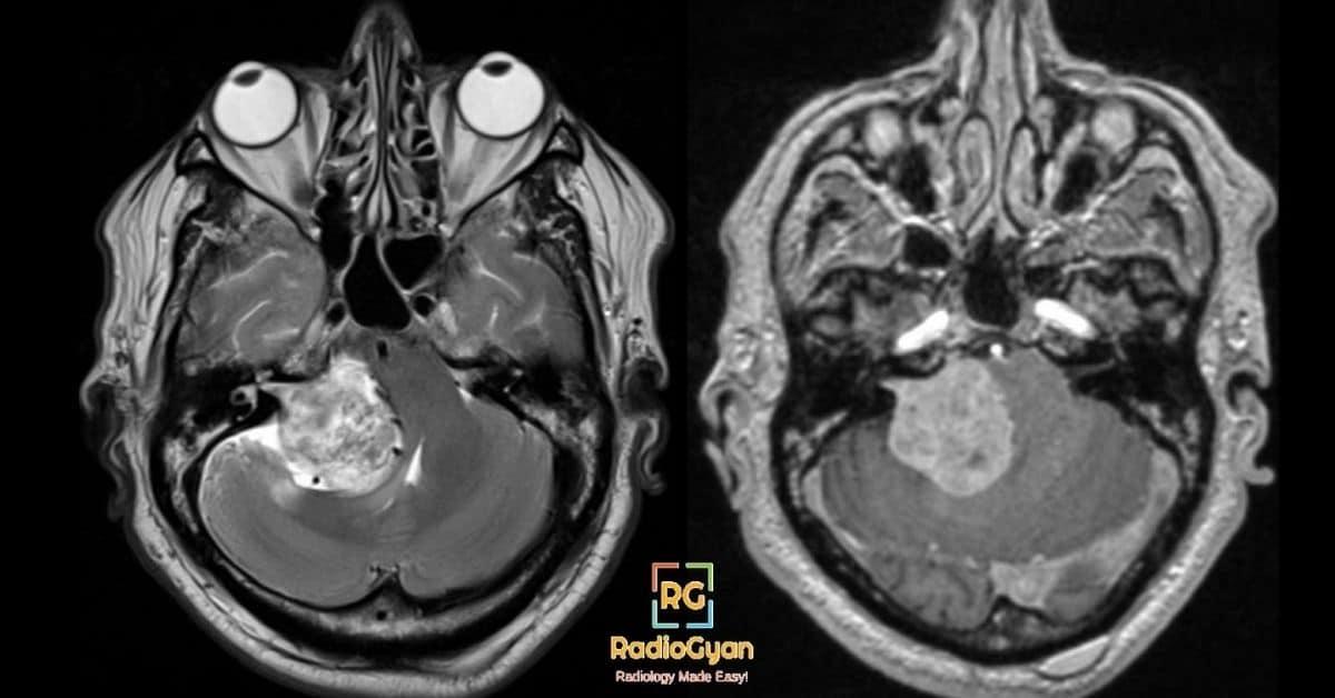 Acoustic Schwannoma Neurofibromatosis 2