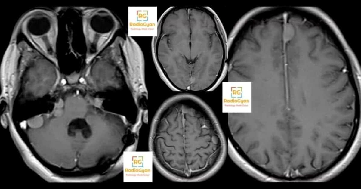 Bilateral acoustic schwannomas in Neurofibromatosis 2