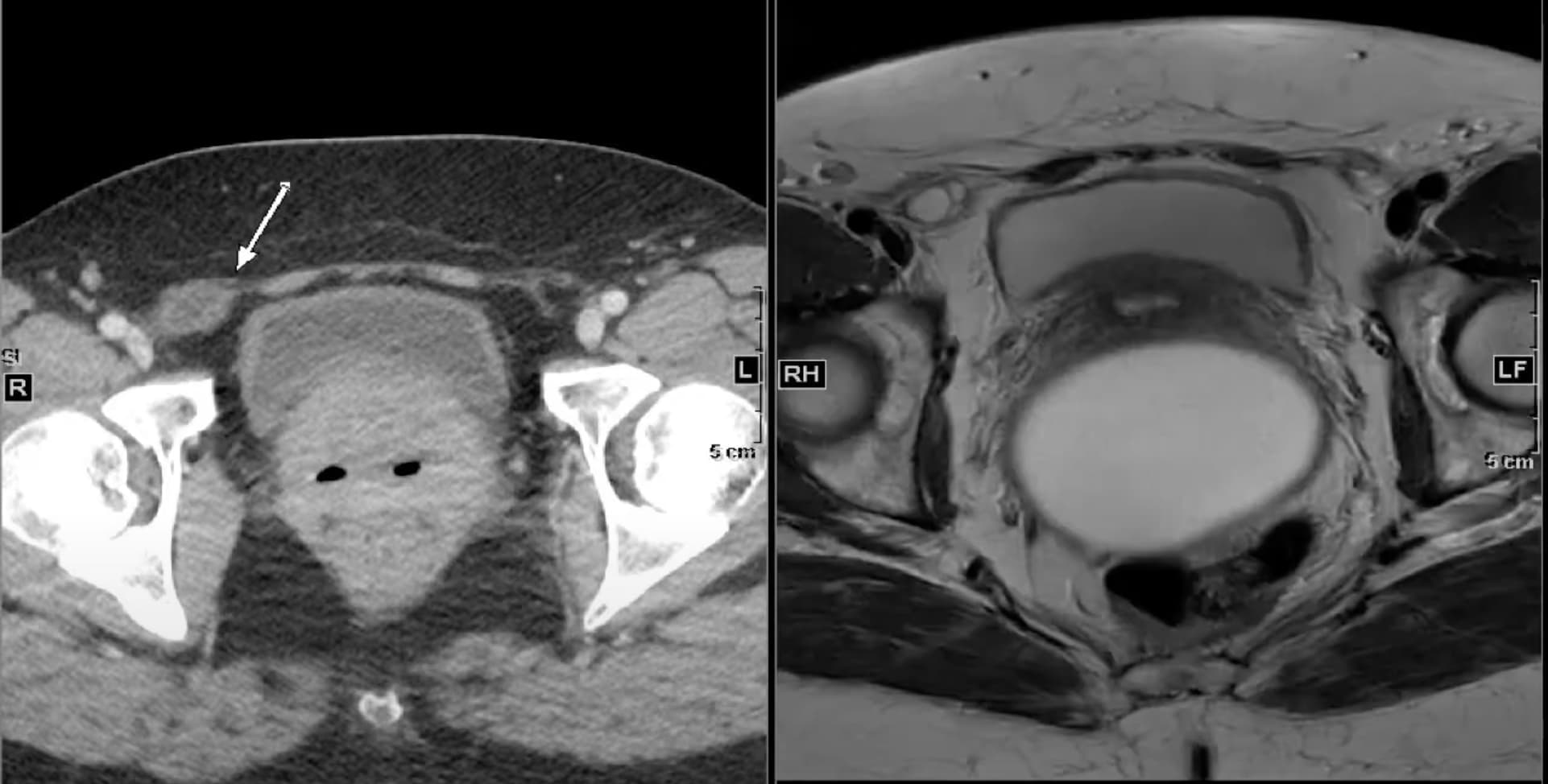 Canal of Nuck cyst MRI and CT findings