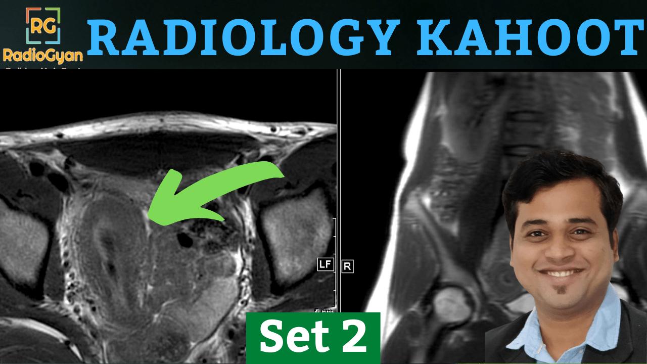 Radiology Kahoot Quiz 2nd Edition