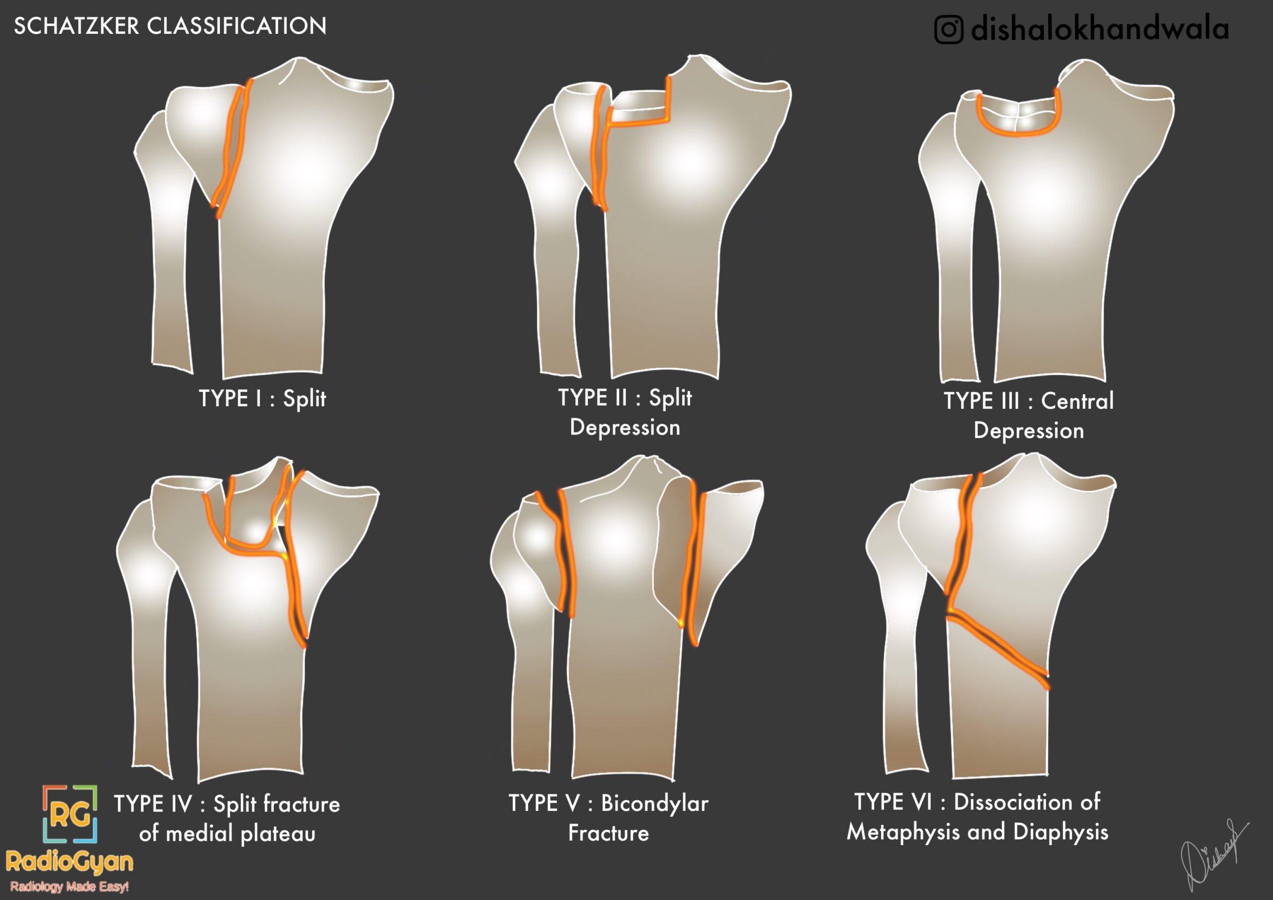 Schatzker classification of tibial plateau fractures