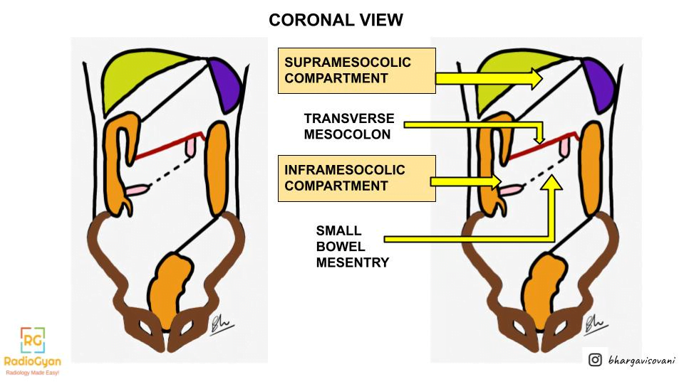 The Potential Spaces-Mapping the Peritoneal Cavity