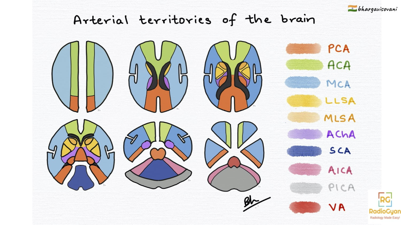 Brain Arterial Vascular Territories (Illustration)