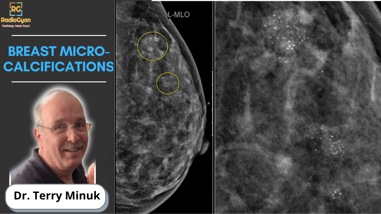 Breast Microcalcifications mammography lecture