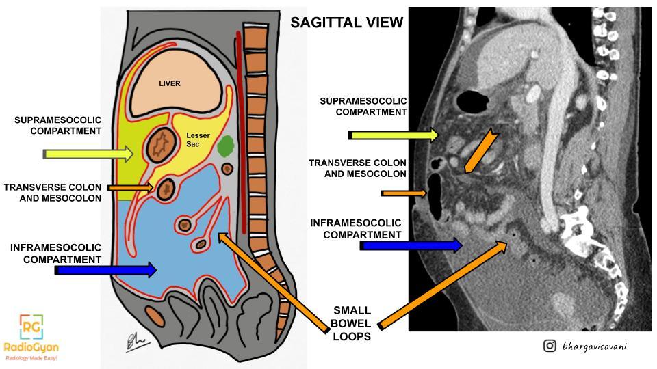 Sagittal view of peritoneal compartments illustration