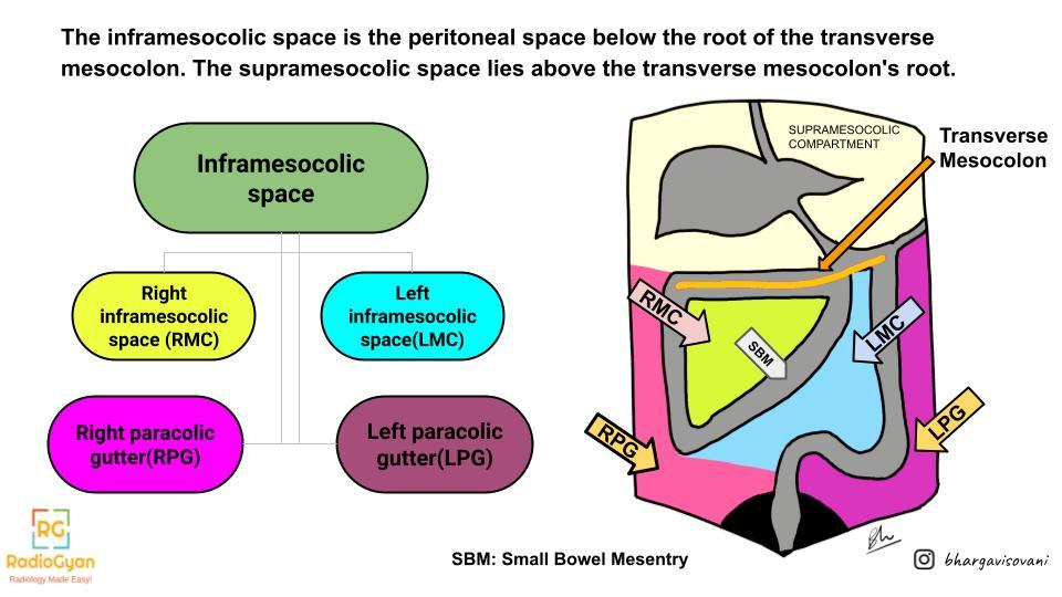 Inframesocolic space anatomy illustration