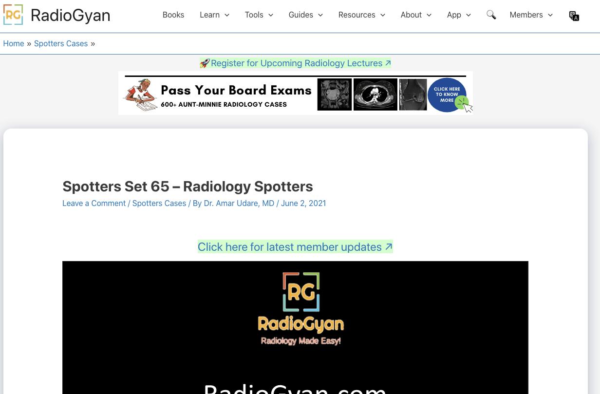 Radiogyan Radiology Spotters Interface